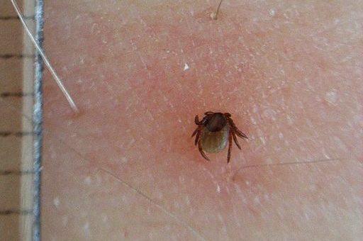 Dlaczego trudno jest szybko zauważyć kleszcza wbitego w skórę?
